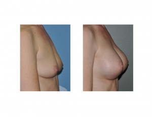 Textured Shaped Silicone Breast Augmentation result side view Dr Barry Eppley Indianapolis