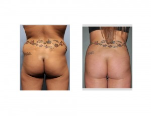 Tummy Tuck and Brazilian Butt Lift result back view Dr Barry Eppley Indianapolis