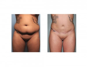Tummy Tuck and Brazilian Butt Lift result front view Dr Barry Eppley Indianapolis