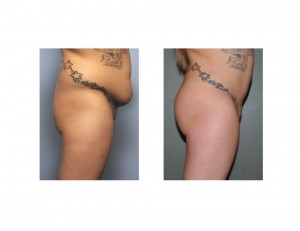 Tummy Tuck and Brazilian Butt Lift result side view Dr Barry Eppley Indianapolis