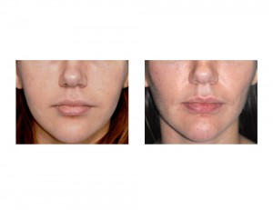 Buccal Lipectomy and Perioral Mound Liposuction result front view Dr Barry Eppley Indianapolis
