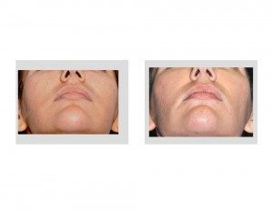 Buccal Lipectomy and Perioral Mound Liposuction result submental view Dr Barry Eppley Indianapolis