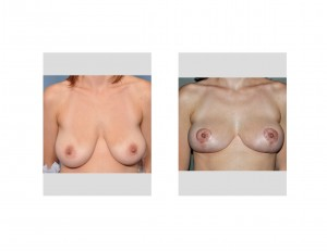 Early Breast Lift results Dr. Barry Eppley Indianapolis
