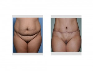 HH Tummy Tuck results front view