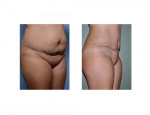 HH Tummy Tuck results oblique view