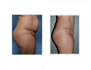 HH Tummy Tuck results side view