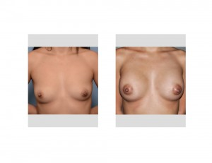Hispanic Breast Augmentation result front view Dr Barry Eppley Indianapolis