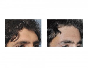 Male Forehead Augmentation result oblique view