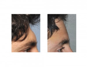 Male Forehead Augmentation result side view