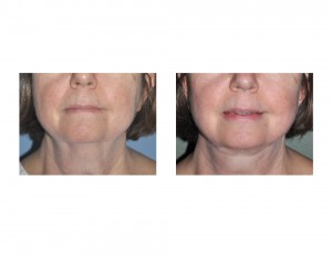 Necklift result Dr Barry Eppley Indianapolis front view