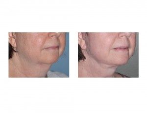 Necklift result Dr Barry Eppley Indianapolis oblique view