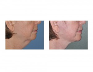 Necklift result Dr Barry Eppley Indianapolis side view