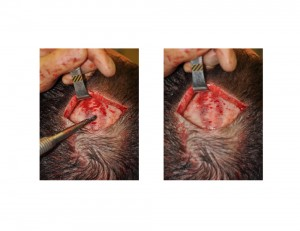 Sagittal Ridge Skull Deformity burring reduction Dr Barry Eppley Indianapolis