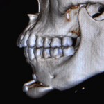 Sliding Genioplasty step off Dr Barry Eppley Indianapolis