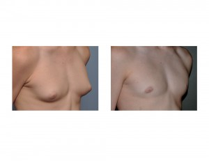 Teenage GYnecomastia Reduction result oblique view Dr Barry Eppley Indianapolis
