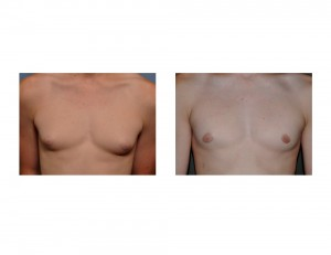 Teenage GYnecomastia Reduction results front view Dr Barry Eppley