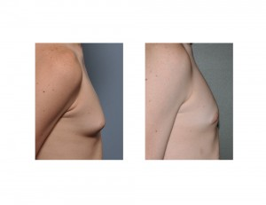 Teenage Gynecomastia Reduction results side view Dr Barry Eppley Indianapolis