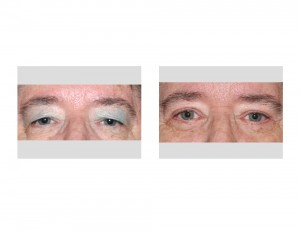 Visual Field Obstruction Blepharoplasties result front view