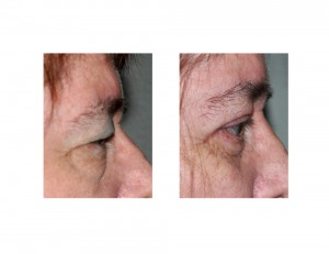 Visual Field Obstruction Blepharoplasties result side view