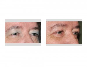 Visual Field Obstruction Browlift Blepharoplasties result oblique view Dr Barry Eppley Indianapolis