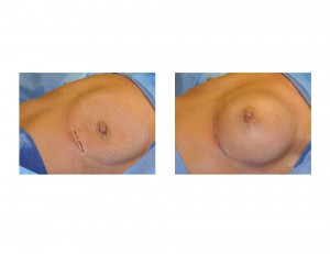 Breast Implant Chest Wall Deformity Dr Barry Eppley Indianapolis