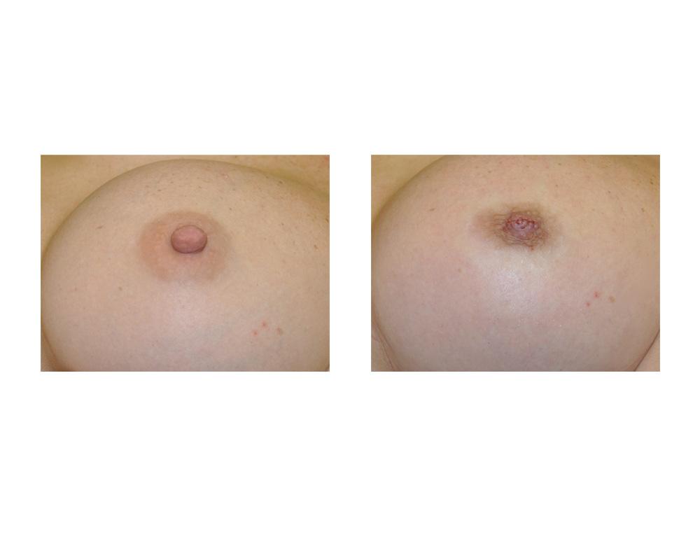 Are 34b breast size blog women aerola thanks