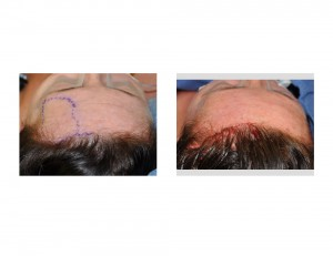 Forehead Hydreoxyapatite Cement Augmentation with Pretrichjal Incision Dr Barry Eppley Indianapolis