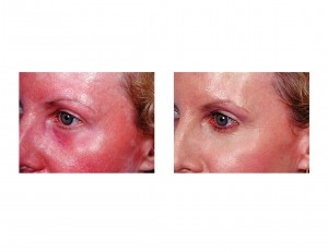 Fractional Laser Resurfacing Face Dr Barry Eppley Indianapolis