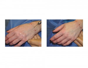 Hand Rolling for Fat Injections Dr Barry Eppley Indianapolis