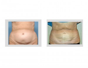 Smartlipo Abdominal Liposuction result front view Dr Barry Eppley Indianapolis