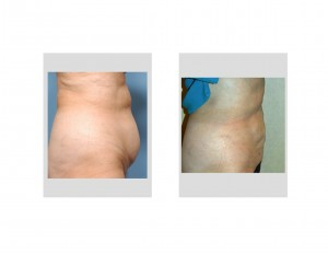 Smartlpo Abdominal Liposuction result side view Dr Barry Eppley Indianapolis