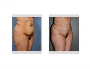 Tummy Tuckj Surgery Indianapolis Dr Barry Eppley