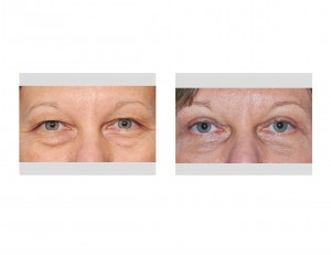 Upper Blepharoplasty Indianapolis Dr Barry Eppley