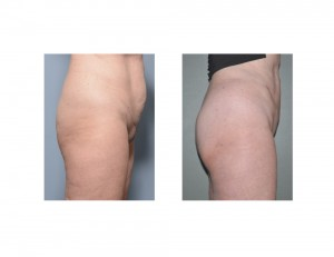 Vertical Tummy Tuck result left side view Dr Barry Eppley Indianapolis