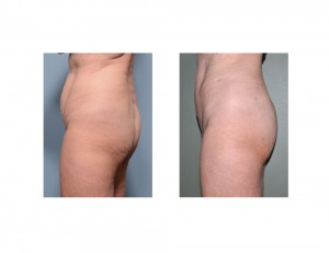 Vertical Tummy Tuck result side view Dr Barry Eppley Indianapolis