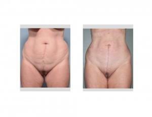 Vertical Tummy Tuck results front view Dr Barry Eppley Indianapolis