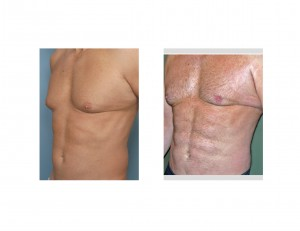 Abdominal Etching result Dr Barry Eppley Indianapolis