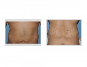 Abdominal and Flank Harvest Sites fort Deltoid Augmentation by Fat Injections Dr Barry Eppley Indianapolis