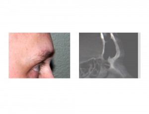 Brow Bone Rerduction by Burring Dr Barry Eppley Indianapolis Preoperative X-Ray