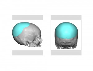 Custom Occipital Implant design Dr Barry Eppley Indianapolis
