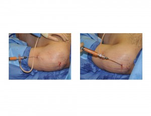 Deltoid (Small Shoulder) Augmnentation by Fat Injections Dr Barry Eppley Indianapolis