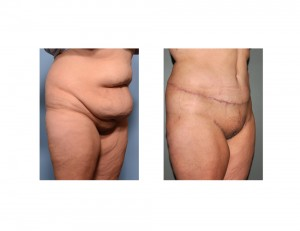 Extdnded Tummy Tuck results oblique view Dr Barry Eppley Indianapolis