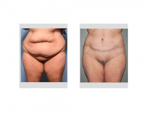 Extended Tummy Tuck result frnt view Dr Barry Eppley Indianapolis
