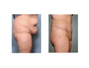 ExtendedTummy Tuck results side view Dr Barry Eppley Indianapolis
