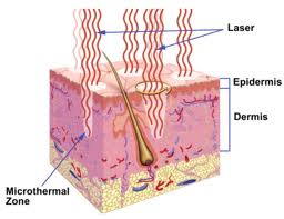 Fractional Laser Resurfacing of scars Dr Barry Eppley Indianapolis