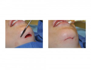 Jawline Shave Reciprocating Saw Dr Barry Eppley Indianapolis