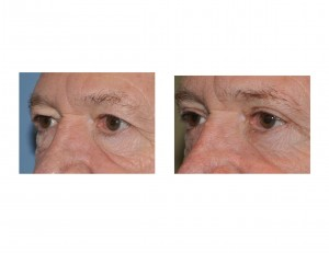 Lower Blepharoplasty with lateral Canthopexy Dr Barry Eppley Indianapolis