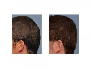PMMA Bone Cement Occipital Augmentation results side view Dr Barry Eppley Indianapolis