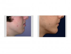 Sliding Genioplasty result side view Dr Barry Eppley Indianapolis