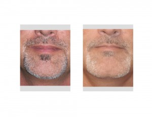 Square Chin Implant with Cleft result Dr Barry Eppley Indianapoliis